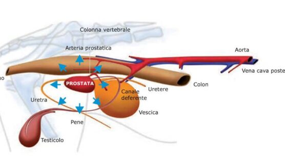 prostata cane